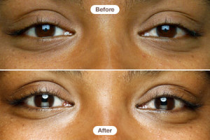 Are Eye Cremes Just A Scam? By Lavish Skin - Call Us On 03 5762 8404