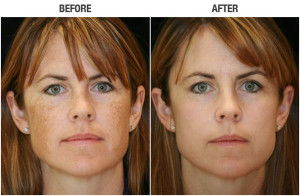 Do You Have To Be A Celebrity To Have Skin Like This? By Lavish Skin - Call Us On 03 5762 8404