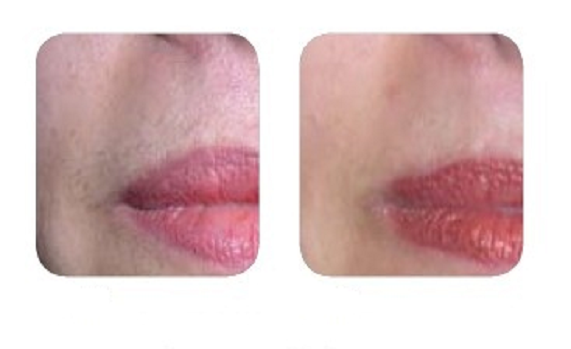 Before and after image for Unilux face treatment