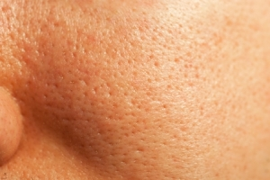 What You Can Do About Large Pores By Lavish Skin - Call Us On 03 5762 8404