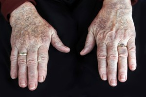 Can Intense Pulsed Light Help My Hands? By Lavish Skin - Call Us On 03 5762 8404