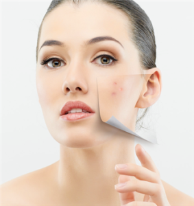 Did You Know This Contributes To Adult Acne? By Lavish Skin - Call Us On 03 5762 8404
