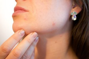 Why Do Adults Still Get Acne?