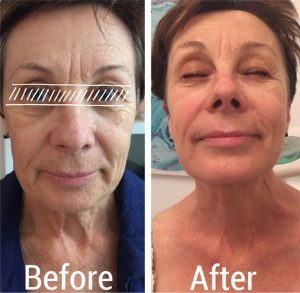 Before and after treatments for facial skin tightening-Lavish Skin Therapy Clinic-hydro dermabrasion-beauty salon benalla-03 5762 8404