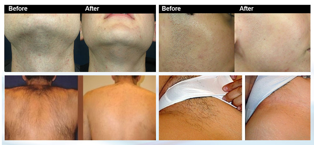 Before and after treatments for hair removal and skin tightening-Lavish Skin Therapy Clinic-hydro dermabrasion-beauty salon benalla-03 5762 8404