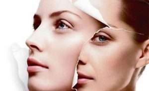 Eyelid lift treatment-Lavish Skin Therapy Clinic-hydro dermabrasion-beauty salon benalla-03 5762 8404