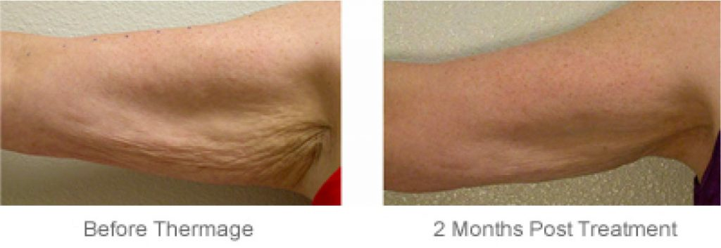 Non Invasive arm skin tightening-Lavish Skin Therapy Clinic-hydro dermabrasion-beauty salon benalla-03 5762 8404